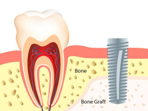 bone graft dental implants